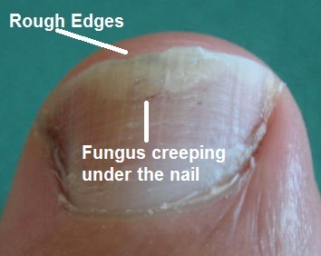 What is toenail fungus